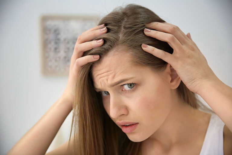 How To Deal With Hair Loss